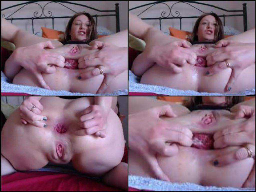 Amateur prolapse asshole sexy chick