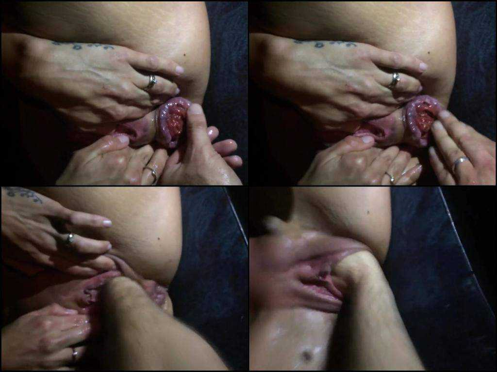 Unusual anus prolapse and deep vaginal fisting milf