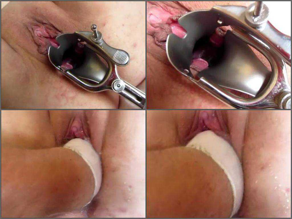 Bbw vaginal speculum and awesome fisting homemade