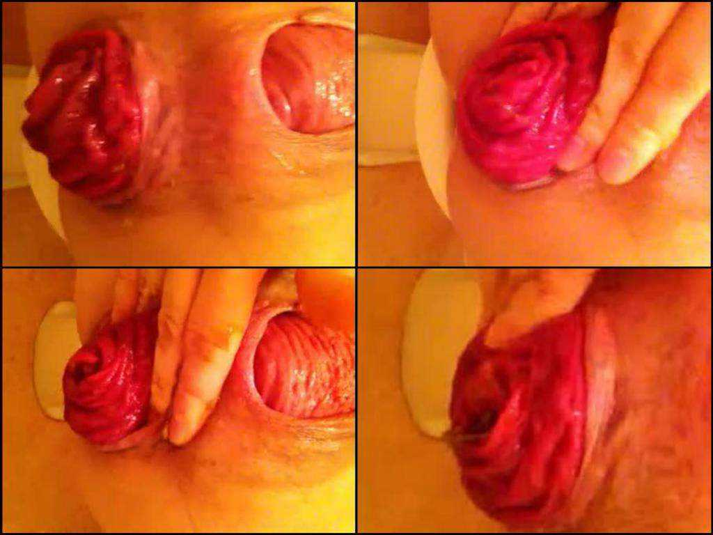 Bizarre amateur closeup huge prolapse asshole