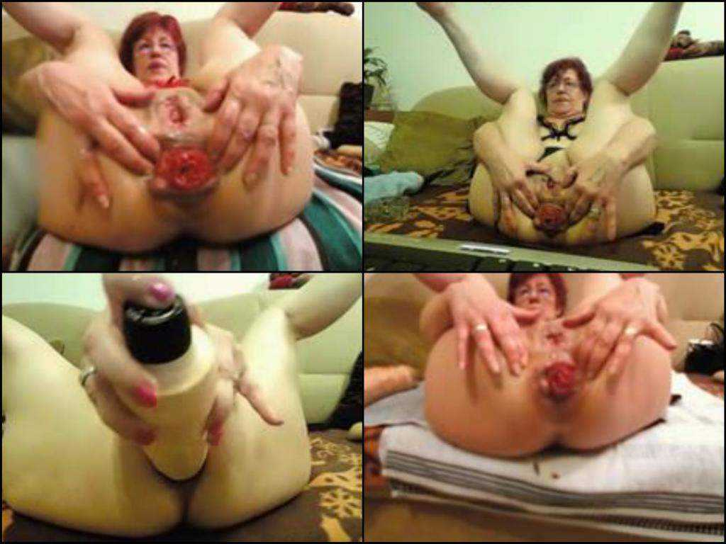 Horny germany granny webcam anal prolapse training