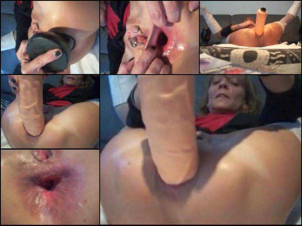 Huge plug granny gaping asshole penetration webcam