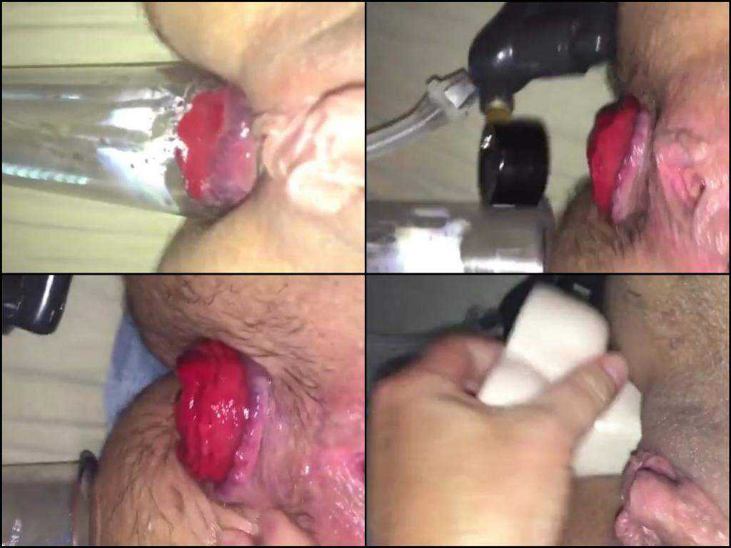 Monster size anal prolapse after ass pumping
