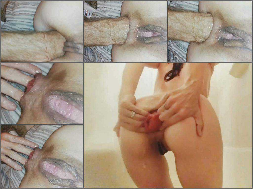 Fisting sex – Ruined anal prolapse after brutal anal fisting homemade with Kittens_dom