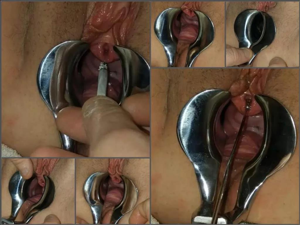 POV – Urethral_play speculum examination and use pussy looks like ashtray